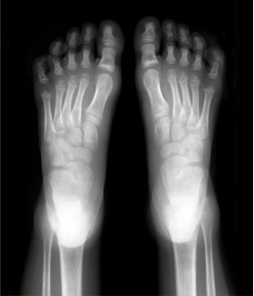 Foot Care-Pharmacy Corner-bones